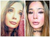 एक्ट्रेस ने कराई Lip सर्जरी, पहली तस्वीर बुरी तरह ट्रोल, लोगों ने किए भद्दे कमेंट्स