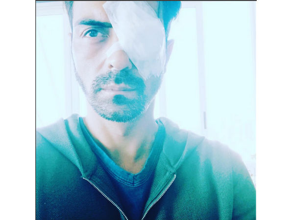 i-am-on-break-after-my-eye-surgery-says-arjun-rampal