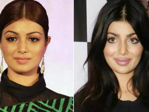 ayesha-takia-opens-up-about-lip-surgery