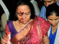 Hema Malini Met An Accident Girl Child Died People Reaction 049050 Pg