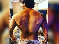 Kalank Varun Dhawan Is Badly Injured Shares Photo The Battle Scars