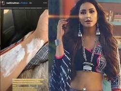 Hina Khan Suffers A Burn Injury While Shooting For Kasauti Zindagi Kay