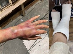 Tapsee Pannu Uploads A Picture With Fractured Legs And Burnt Hands
